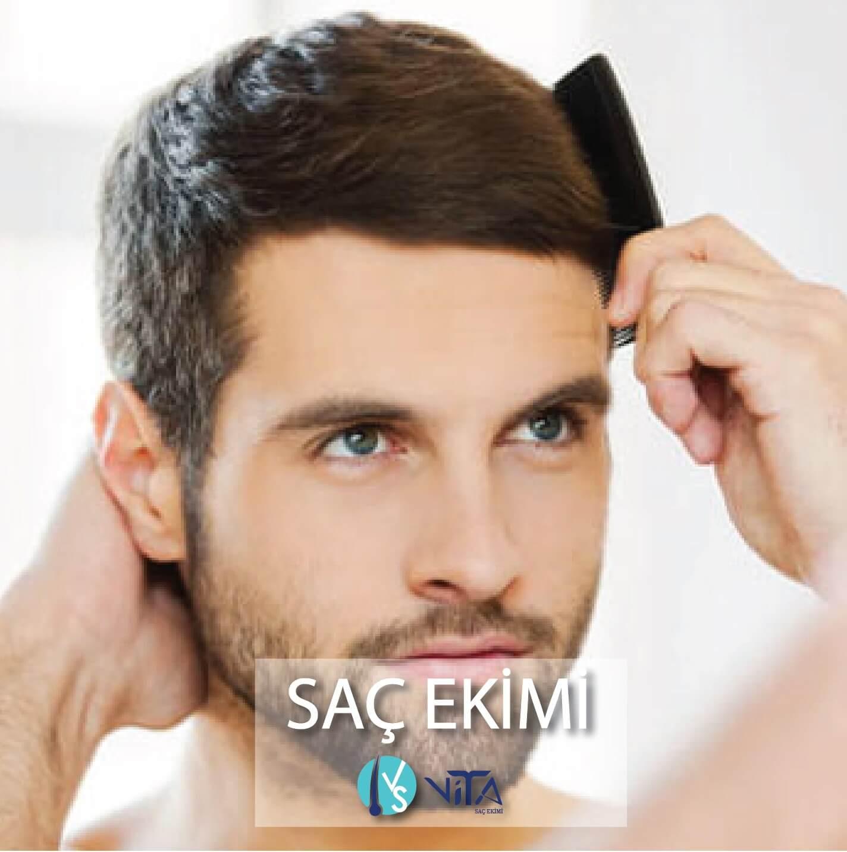 Saç Protezi - Saç Ekimi Hizmeti