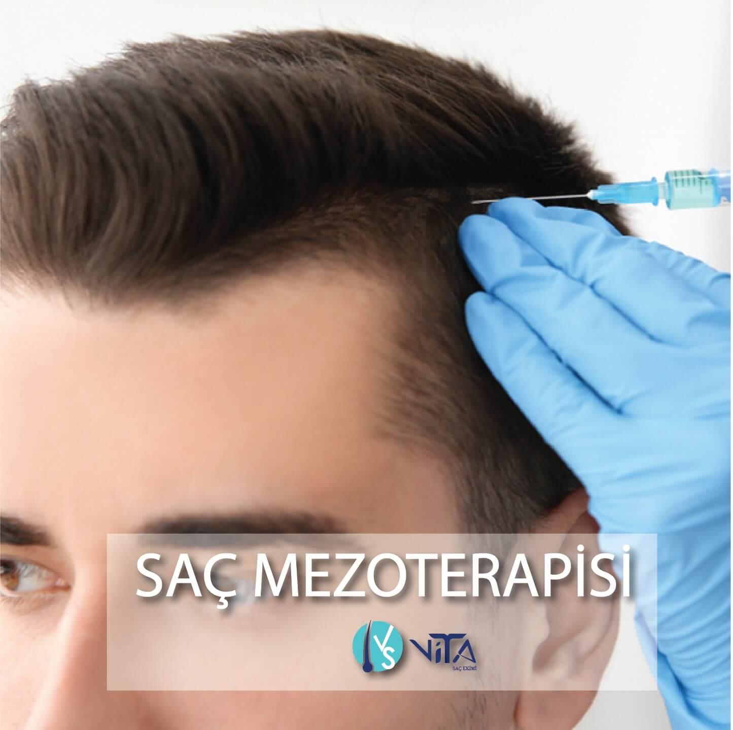 Saç Mezoterapisi - Saç Ekimi PRP Tedavisi
